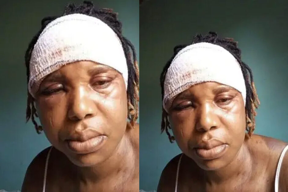 """""""I Need Your Prayers"""" – Nigerian Woman Cries Out After Her Husband Allegedly Nearly Beat Her To Death"""