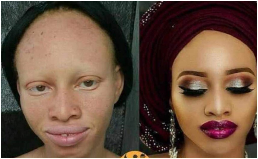 This is A Scam'- Nigerians React After Makeup Transformed An Albino Woman Into A Gem