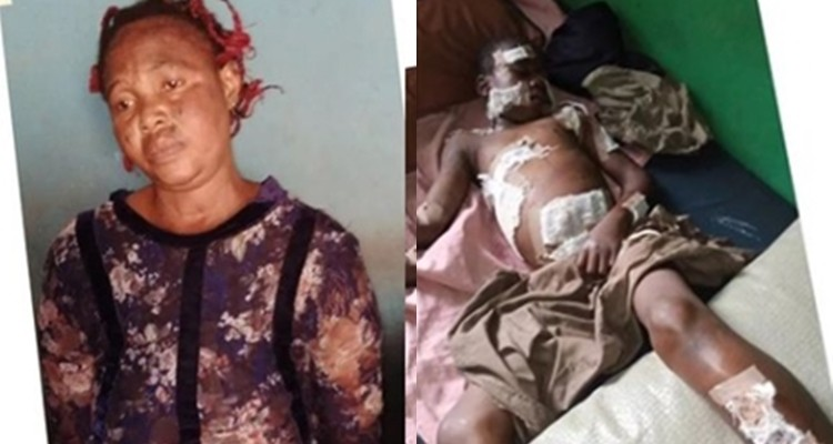 Lady Uses Hot Knife To Inflict Injuries On Her 12-Yr-Old In-Law Over Missing N5,000