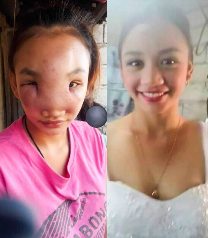 A 17 Year Old Is Turning Blind After Squeezing A Spot On Her Nose