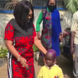 Child's scalp decaying after her aunt poured kerosene on her head (video)